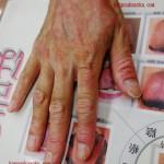 漢方で主婦湿疹が治る