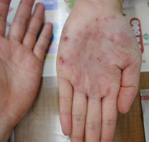 掌蹠膿疱症(一週間後)