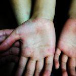 手足口病とは? 初期症状から潜伏期間・学校を休む?休まない?