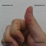 手足口病が流行り始めました、6月7月と増加してます