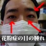 花粉症の目の痒みに使う漢方薬は