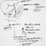 胆石を知る:胆石の症状や原因