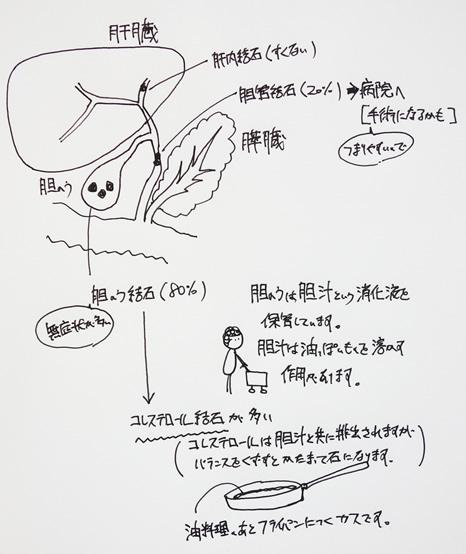 肝臓と胆石