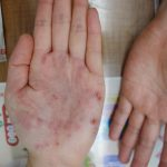 【掌蹠膿疱症】漢方治療で改善したはなし その2